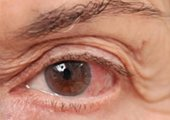 Glaucoma Surgery in Ahmedabad